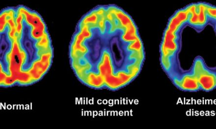 Signs of Mild Cognitive Impairment