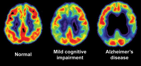 Signs of Mild Cognitive Impairment