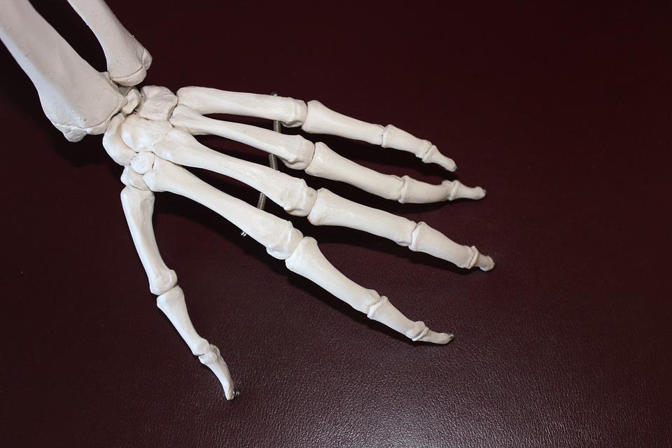Can Arthritis Really Cause Headaches