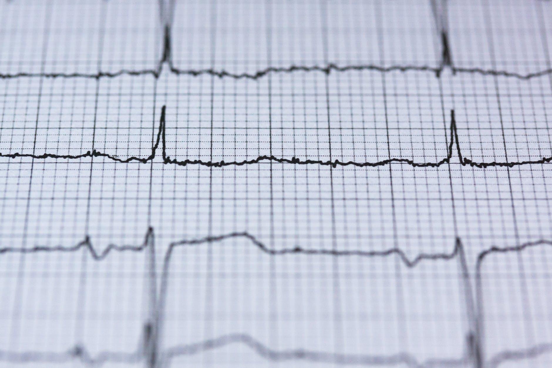 4 major types of cardiovascular diseases 1