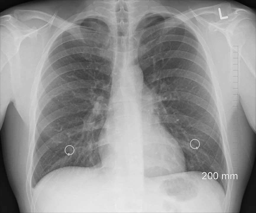 Common lung illnesses among aging adults 1