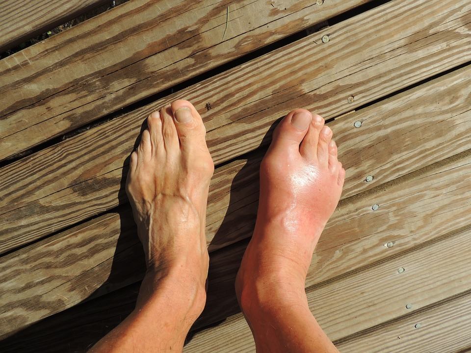 Most common foot injuries in older adults