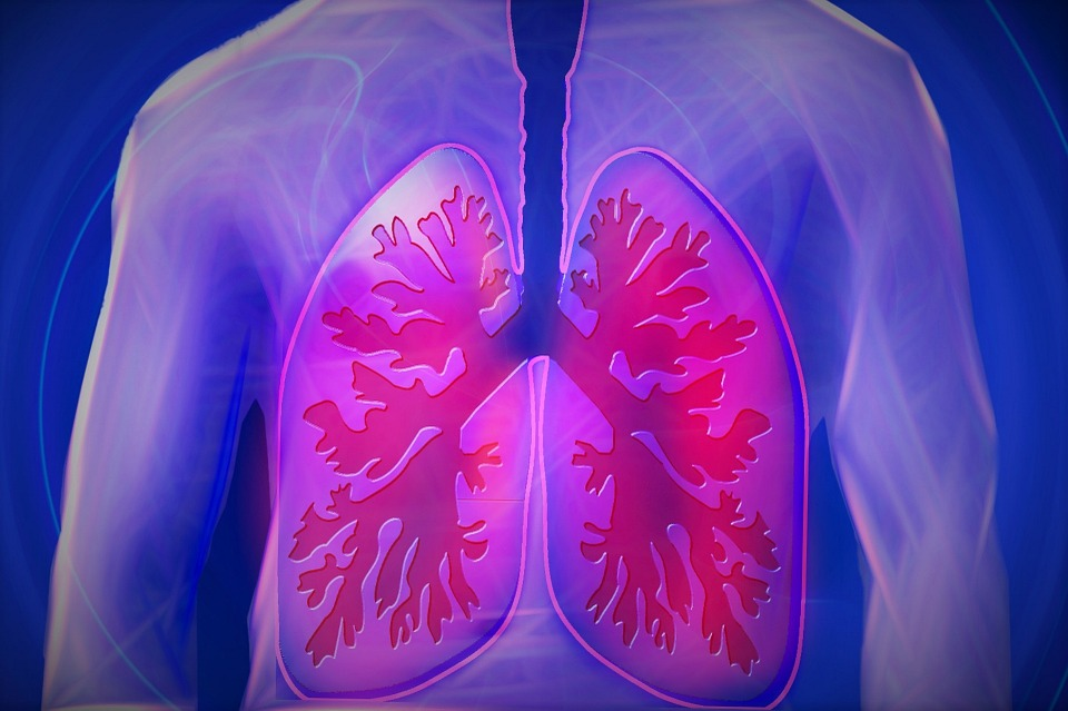 Lung Cancer Screenings 2