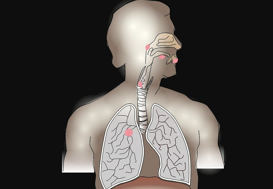 Lung Cancer Screening: Program, Guidelines, Recommendations